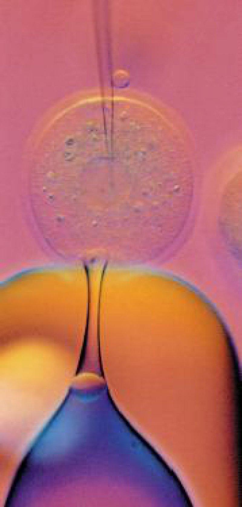 Intrazytoplasmatische Spermieninjektion (ICSI). Foto: Bayer AG