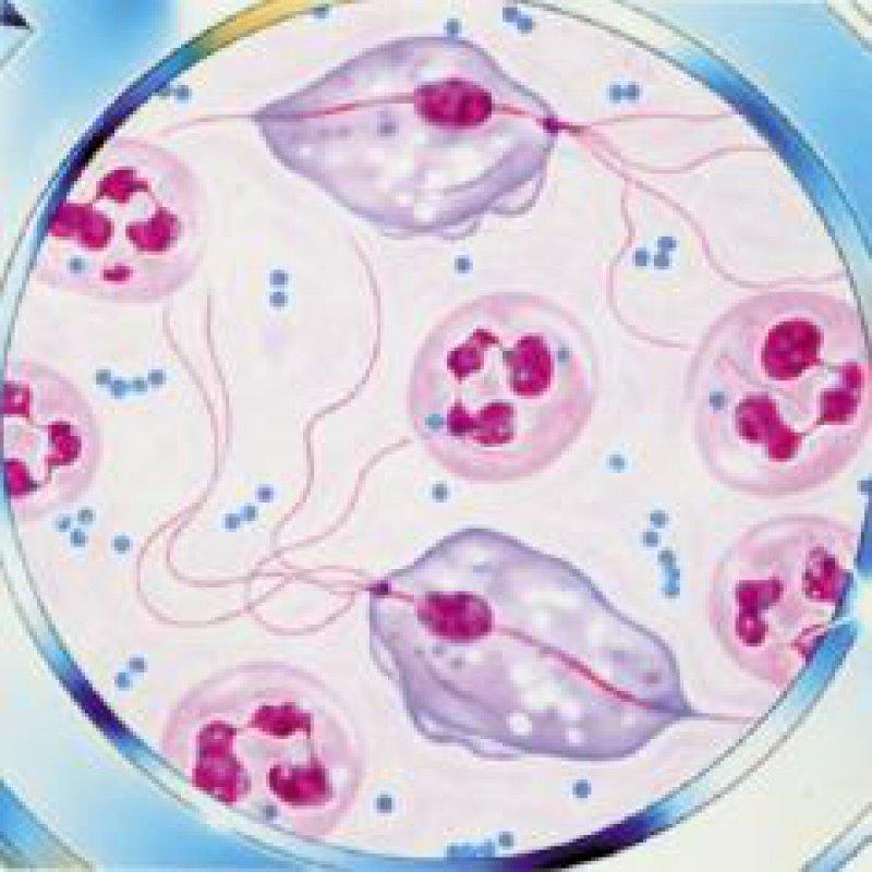 Birnenförmige Trichomonaden, die sich durch Zweiteilung vermehren, verursachen die chronische Kolpitis. Foto: Strathmann