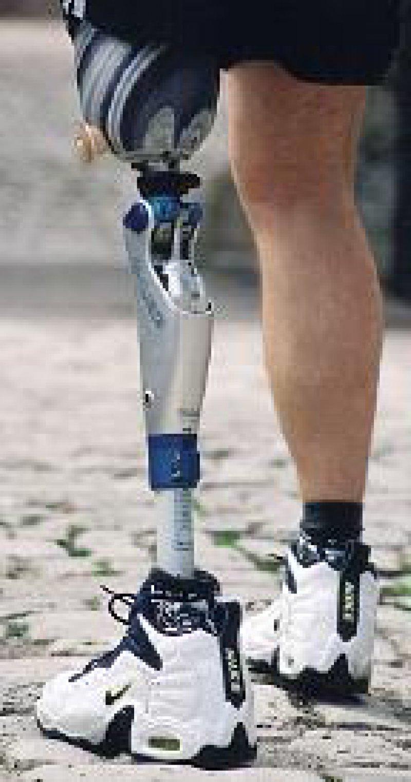 Die computergesteuerte Beinprothese C-Leg ermöglicht eine gleichmäßige Fortbewegung. Werkfoto