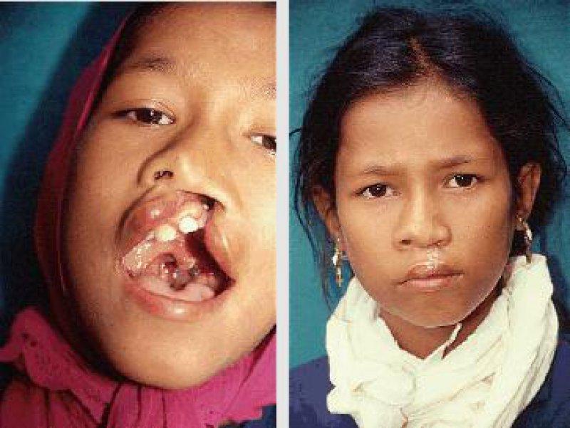 Prä- und postoperativ: 13-jähriges Mädchen aus Westnepal mit durchgehender Lippen- Kiefer-Gaumen-Spalte links, die von deutschen Chirurgen einseitig verschlossen wurde Fotos: Hans-Dieter Pape