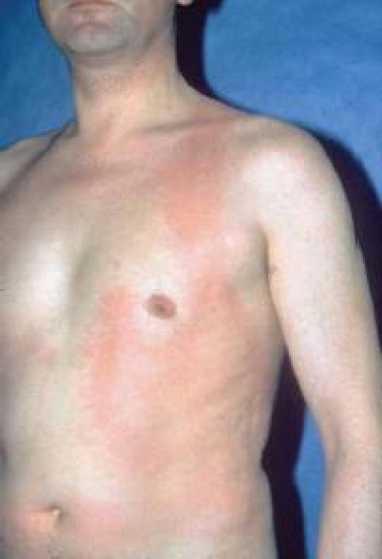 Abbildung 1: Lichturtikaria mit besonderer Ausprägung im Bereich des Unterhemdes, das heißt dort, wo die Sonne seltener einwirkt.