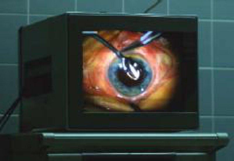 Innovationen in der Augenchirurgie blieben bei den australischen DRGs unberücksichtigt. Foto: Peter Wirtz