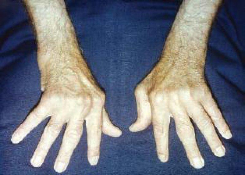 Rheuma-typische ulnare Deviation der Finger als Zeichen der fortgeschrittenen rheumatoiden Arthritis. Dank Soforttherapie bald ein Bild der Vergangenheit? Foto: G. Hein