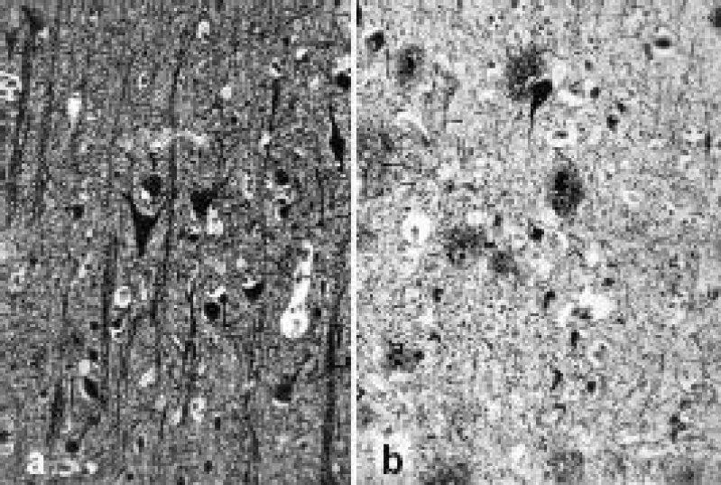 Neuropathologie der Alzheimer-Krankheit: a) gesundes Hirngewebe; b) degeneriertes Gewebe mit Amyloid-Plaques Foto: Archiv