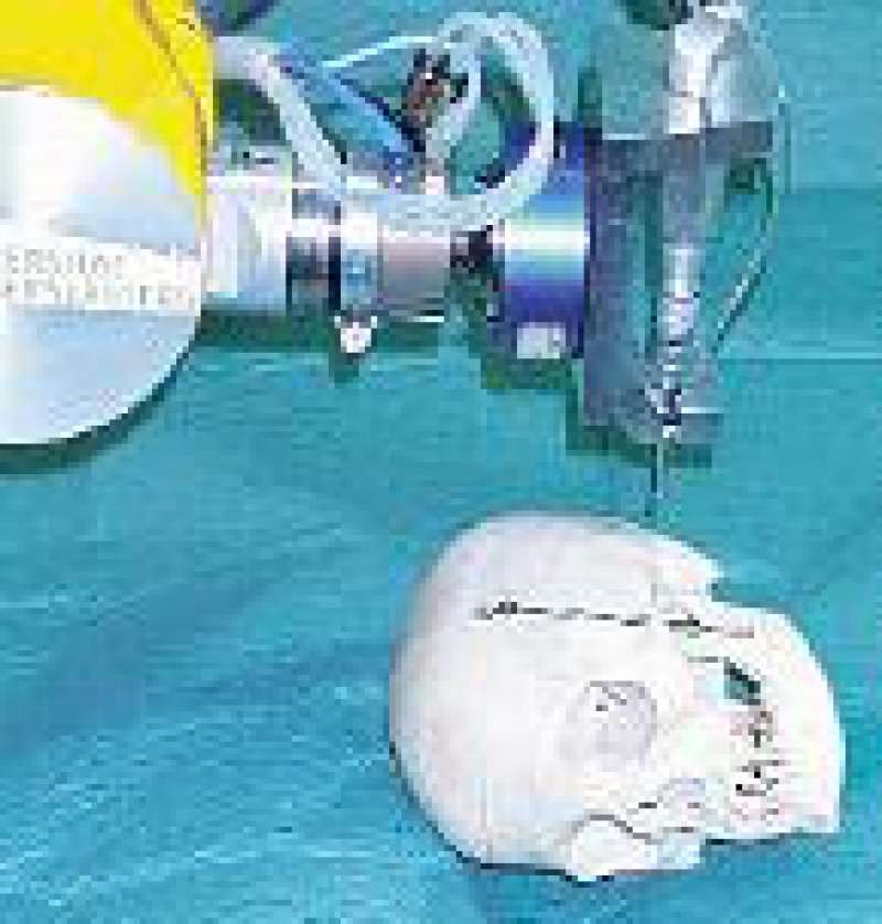 Passgenau fräst der Roboter den Platz für das Cochlea-Implantat. Foto: Universität Karlsruhe