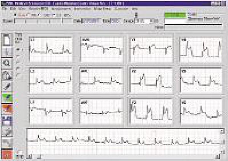 Darstellung eines telefonisch übertragenen EKGs mit zwölf Ableitungen am Bildschirm im Monitor Center