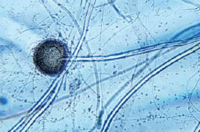 Aspergillus niger mit Sporangium Fotos: Siegfried Hoc
