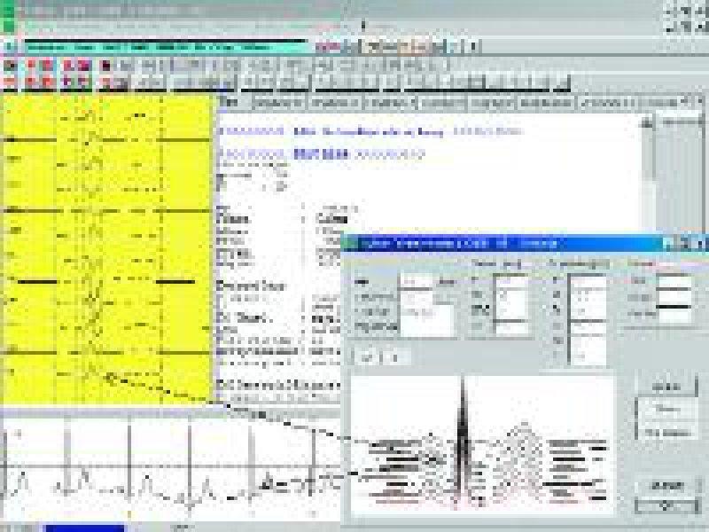 Bildschirmansicht des VES-Programms