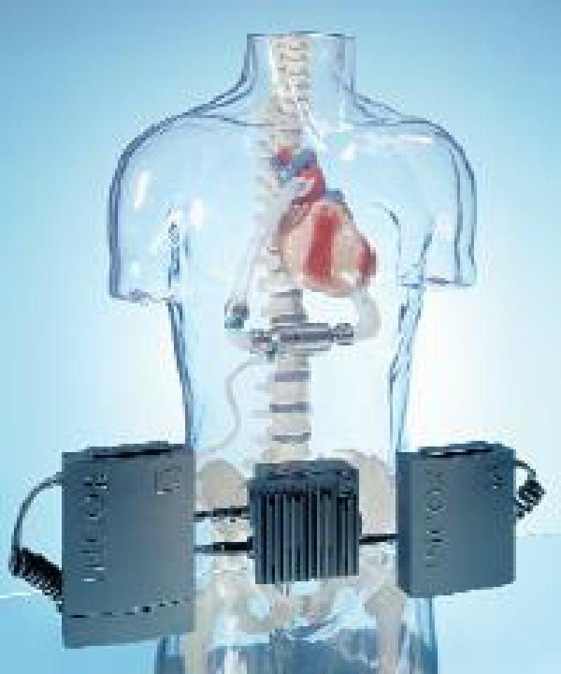 Mit der externen linksventrikulären Unterstützungspumpe Incor I sind die herzinsuffizienten Patienten beweglich; sie führen lediglich eine Walkman-große Steuereinheit und Batterien mit sich, mit denen man bis zu zwölf Stunden von anderen Energiequellen unabhängig ist. Foto: Berlin Heart AG