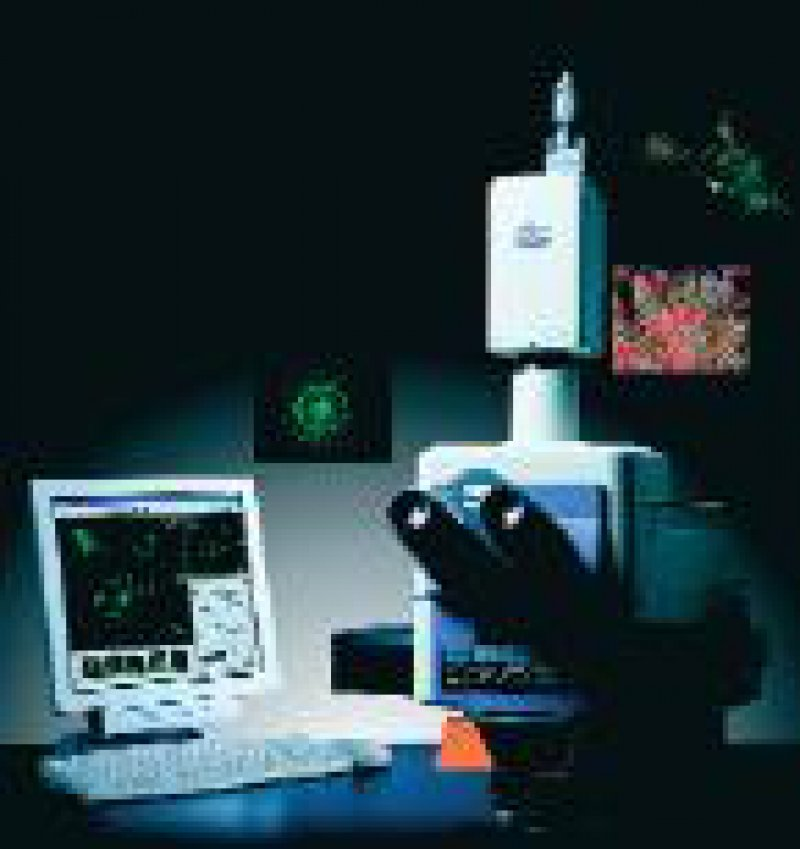 Die Digitalkamera DXM1200F von Nikon kann mikroskopische Aufnahmen mit 12 Megapixel in sechs Sekunden aufnehmen. Werkfoto