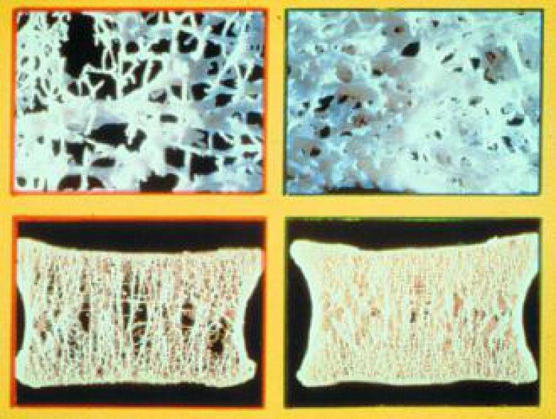 Die Trabekelstruktur eines osteoporotischen Knochens (links) im Vergleich zu einem gesunden Knochen (rechts) Foto: Archiv/Strathmann AG