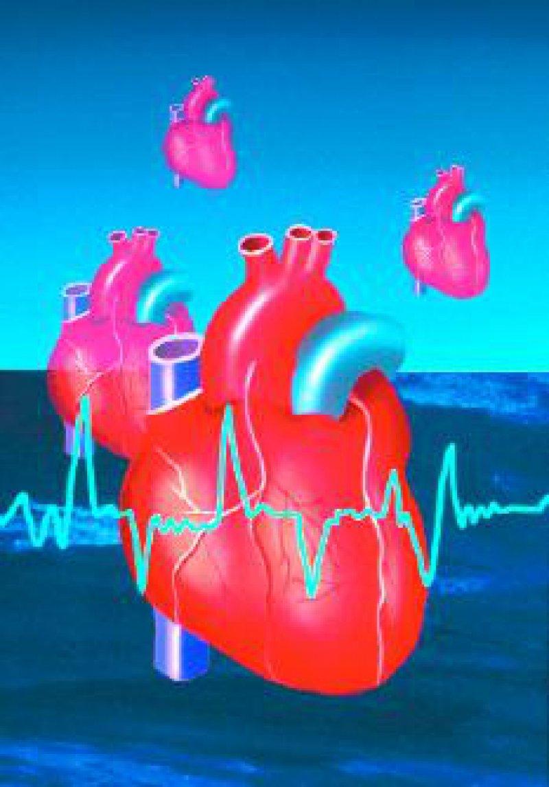 Wenn die Welt sich nur um das Herz dreht: die Jahrestagungen des American College of Cardiology Foto: Superbild