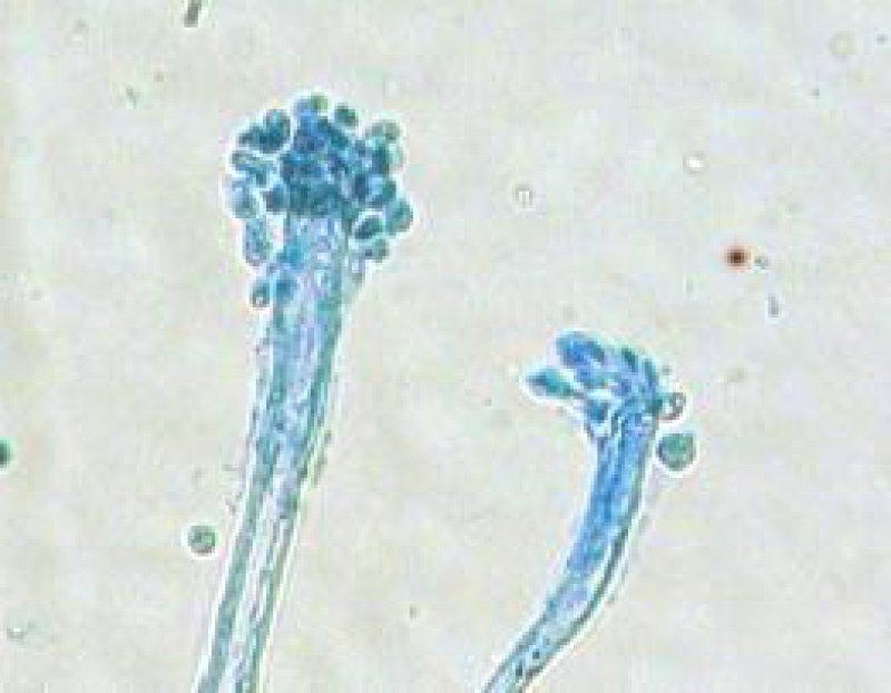 Aspergillus restrictus Foto: Buzina et al.