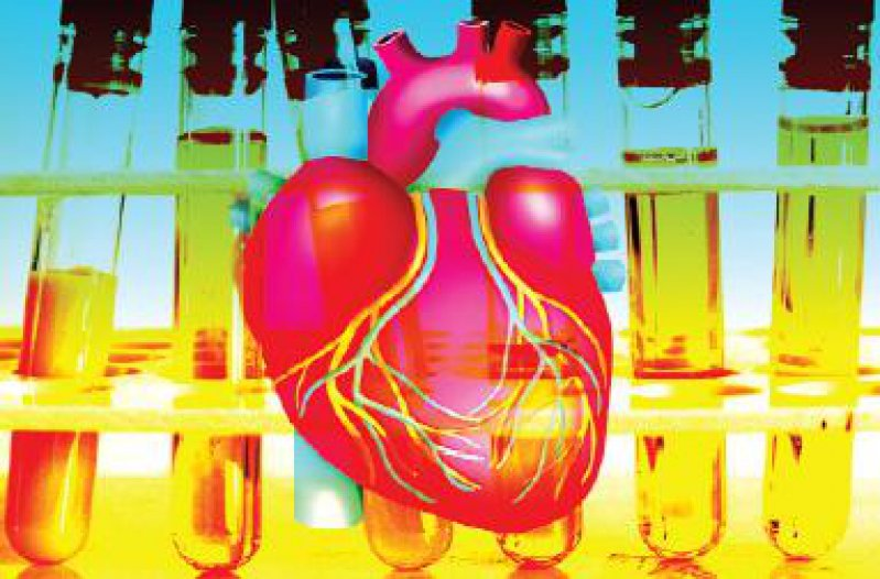 """Bei der Senkung des LDL-Cholesterins wird nicht mehr ein allgemeingültiger """"Normalwert"""", sondern ein individuell risikoabhängiger Zielwert angestrebt. Foto: SuperBild"""