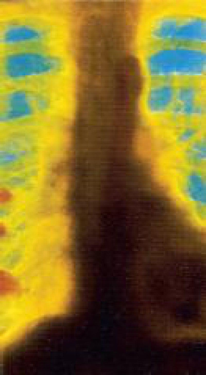 Röntgenbild eines Bronchialkarzinoms Foto: Archiv