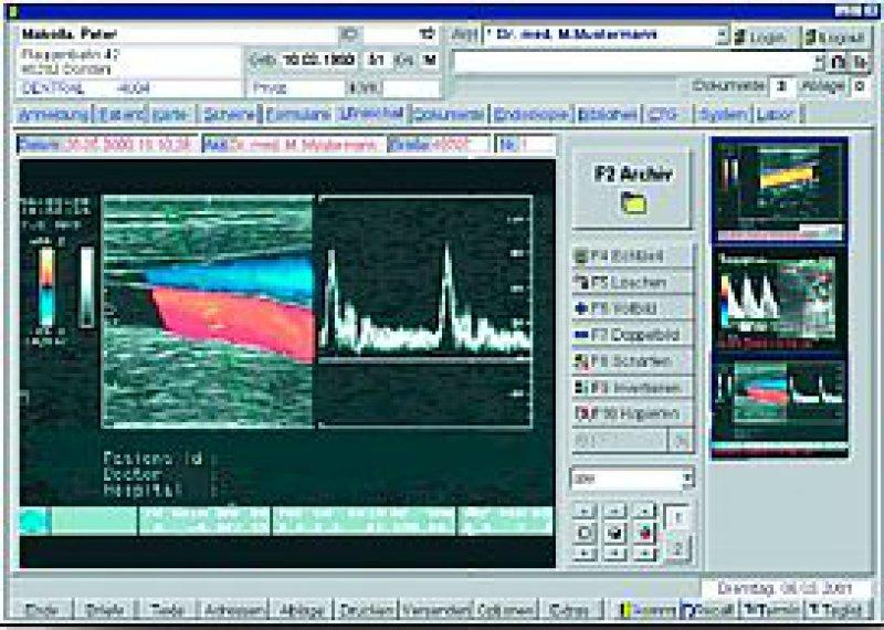 "Bildschirmansicht ""Ultraschall"" aus dem Programm"