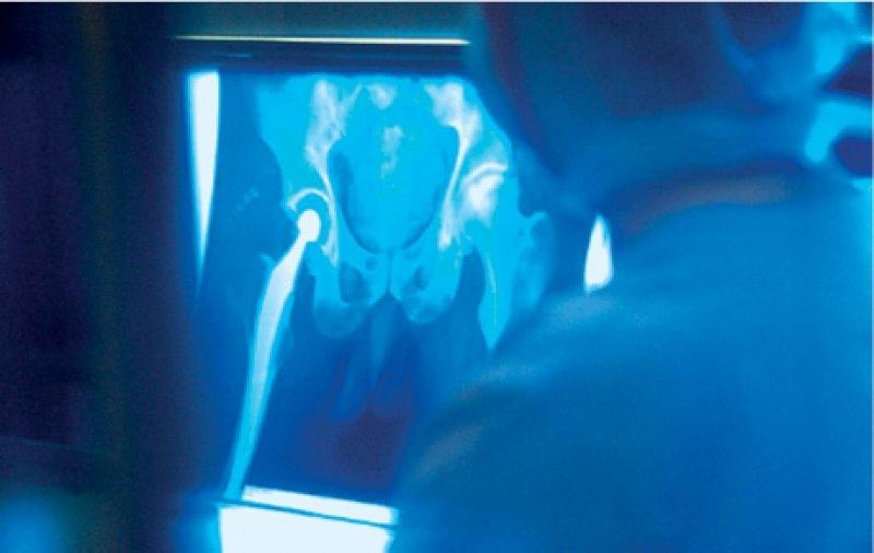 Zahlreiche Integrationsverträge umfassen Hüftgelenksoperationen und die Rehabilitation danach. Evaluationsdaten sind aber rar. Foto: SUPERBILD