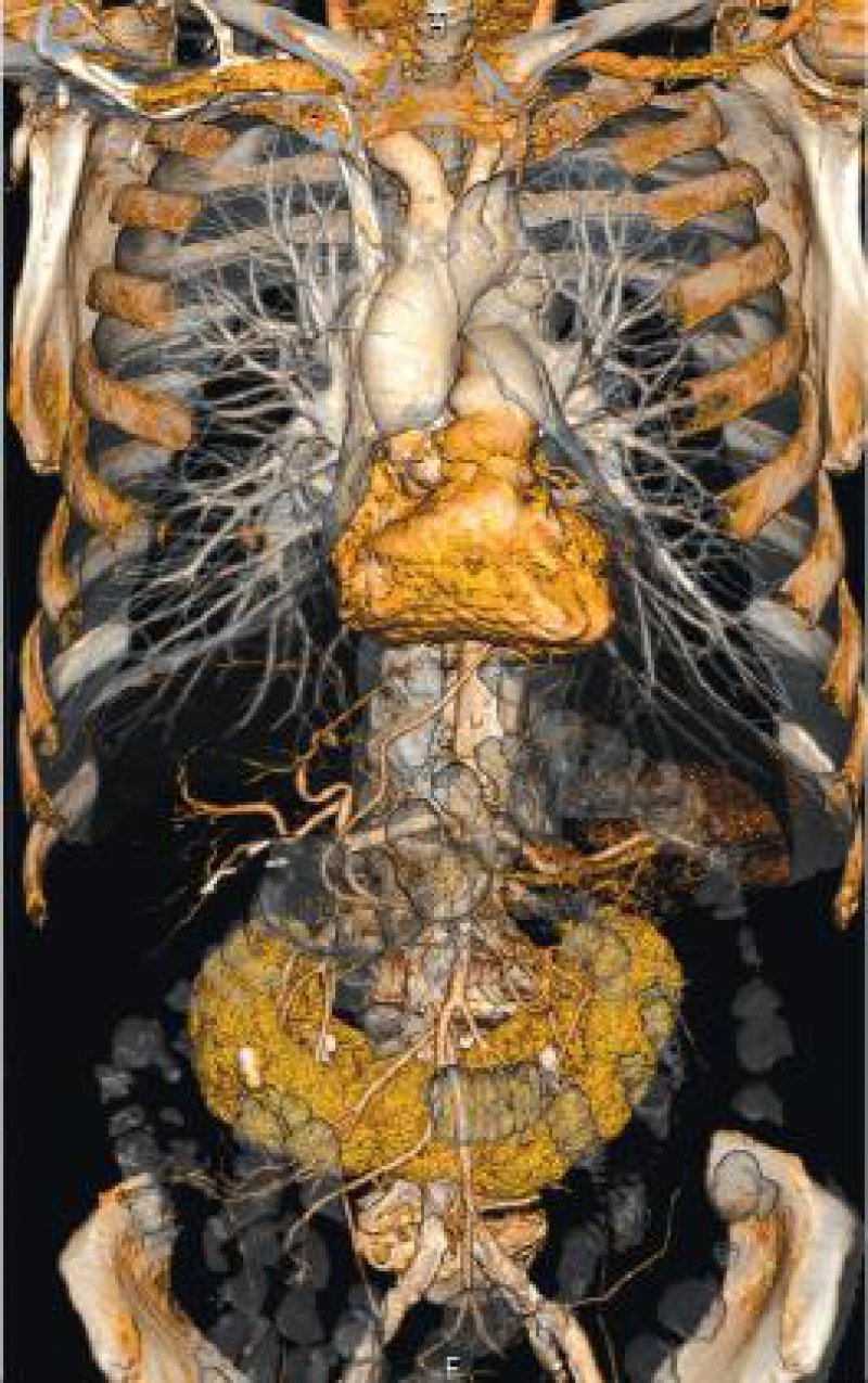 Erhebung des Gefäßstatus: Neben Kalzifizierungen entlang der Aorta zeigt sich eine Hufeisenniere. Abbildungen: Siemens