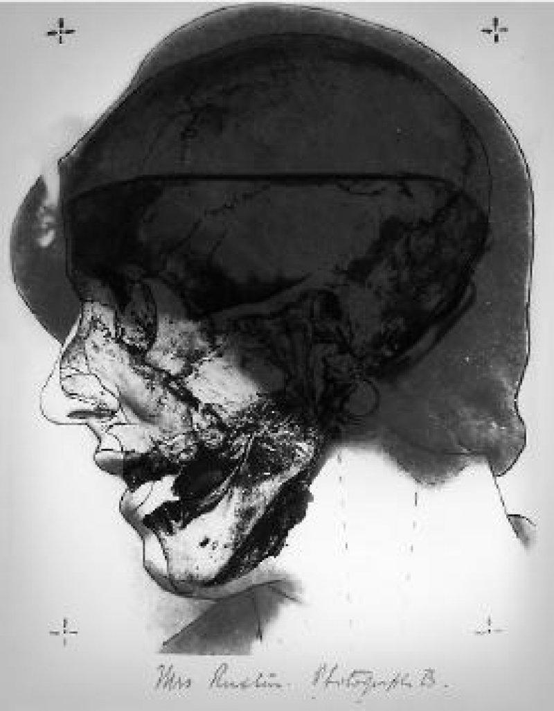 Die Ermittler im Fall Ruxton überblendeten ein Foto des in Schottland gefundenen Schädels mit einer Porträtaufnahme von Mrs Ruxton Foto: University of Glasgow