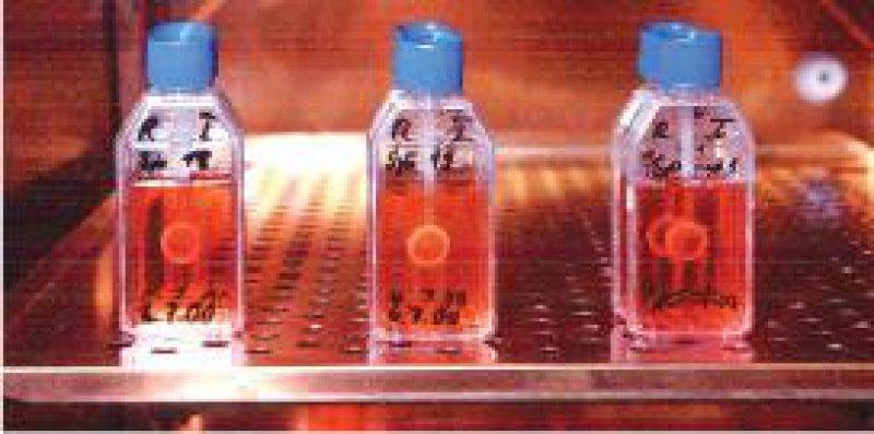 Nach den Plänen des Gesundheitsministeriums fallen künftig auch Hornhauttransplantate unter das Arzneimittelgesetz. Foto: ddp