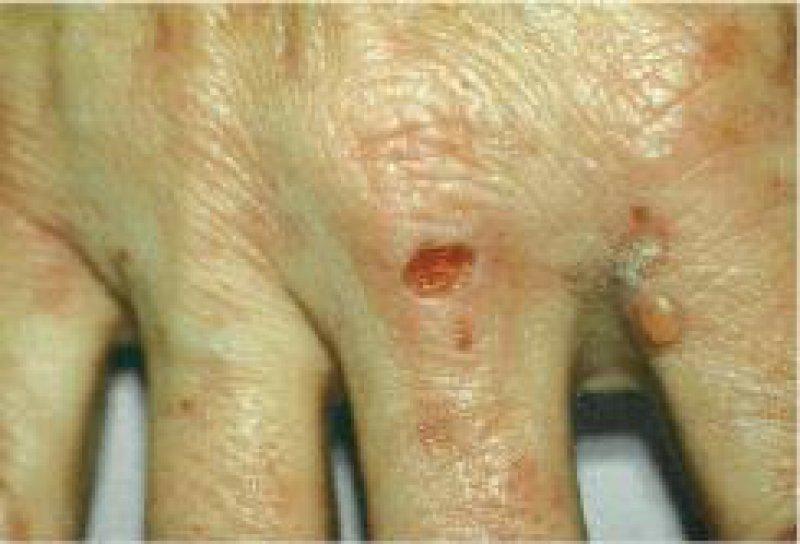 Blasen, Milien und hyperpigmentierte Narben auf dem Handrücken eines Patienten mit Porphyria cutanea tarda. Foto: EPI
