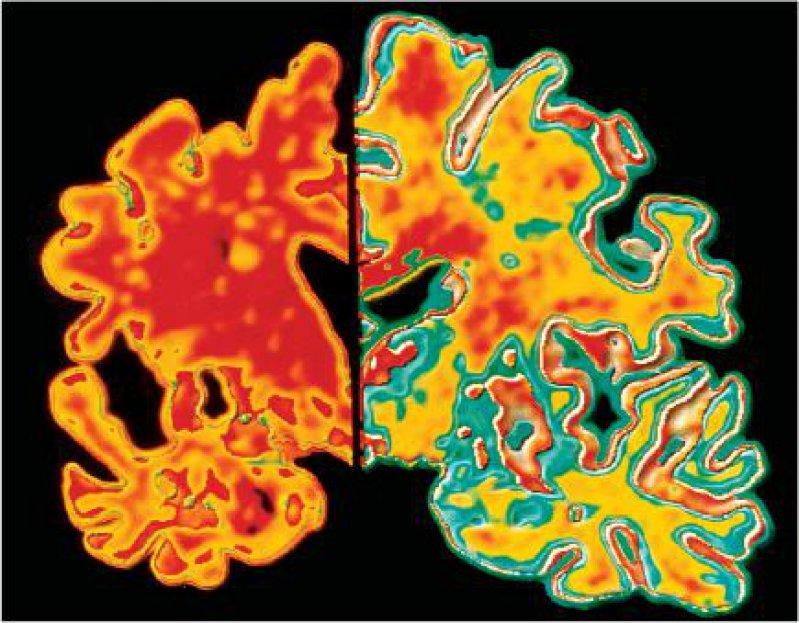 Markante Veränderungen des Gehirns: Bei Alzheimer (links) ist die Gehirnmasse verkleinert, die Liquorbereiche sind vergrößert, und die Durchblutung ist verringert (rote Färbung) Foto: Bayer