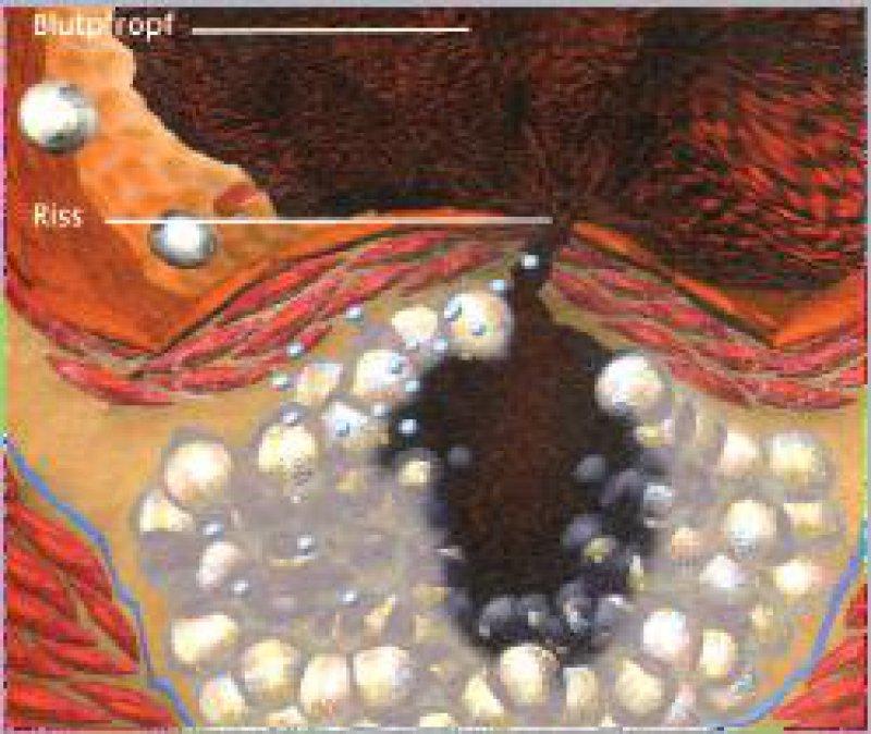 Marburger Hypothese: Fettsäuren induzieren Apoptose im Endothel der Koronarien – es kommt zum Riss. Abbildung: BMBF