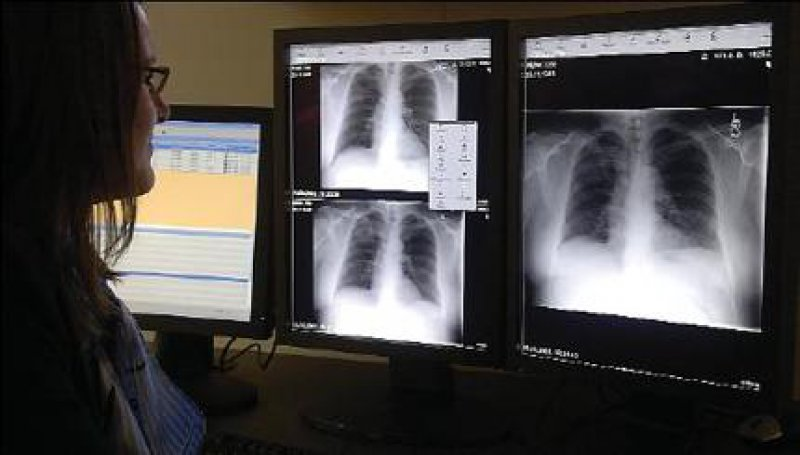 Röntgenbilder und weitere medizinische Daten werden künftig in der elektronischen Patientenakte gespeichert. Fotos: Messe Düsseldorf