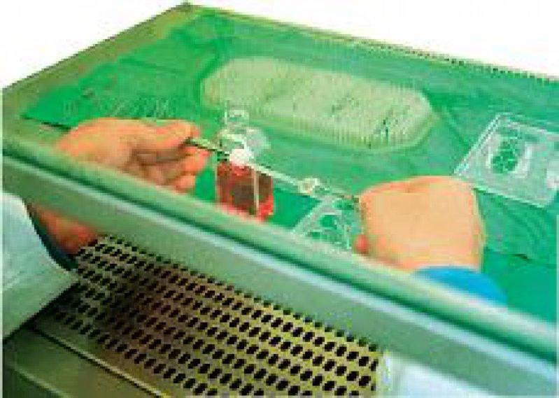 3 000 Augenhornhäute werden jährlich in Deutschland transplantiert. Sie sollen künftig eine Zulassung benötigen. Foto: ddp