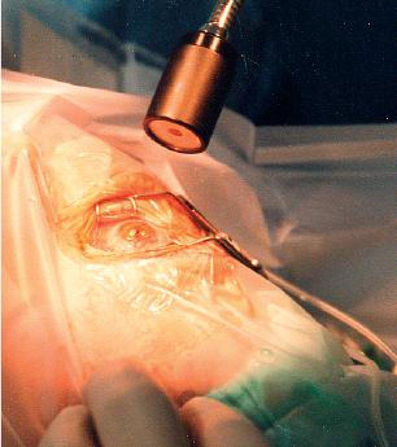 Moderne Verfahren der refraktiven Hornhaut- Chirurgie können eine Kurzsichtigkeit bis minus acht Dioptrien und eine Weitsichtigkeit bis zu vier Dioptrien korrigieren. Foto: Günther Jockel