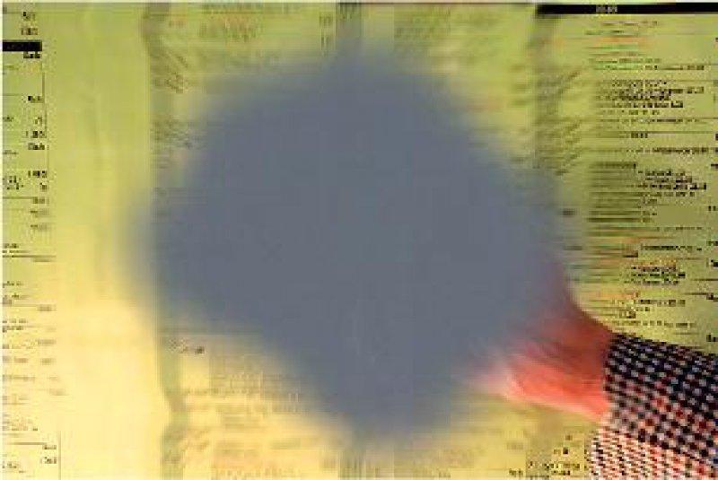 Feuchte Form der altersabhängigen Makuladegeneration (AMD): der für die AMD typische graue Fleck im Zentrum des Gesichtsfeldes aus Sicht des Patienten (oben) und in der Kontrastmitteldarstellung (unten). Fotos: Novartis