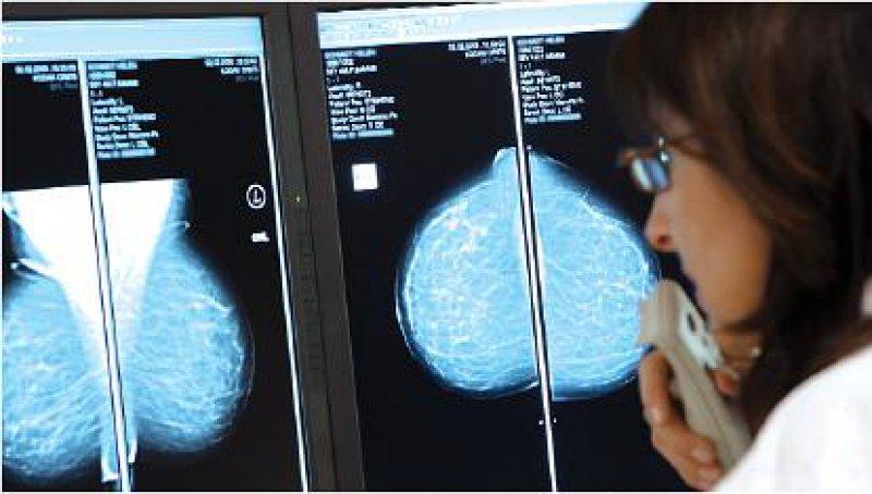 Foto: Gerit Godlewsky/Kooperationsgemeinschaft Mammographie