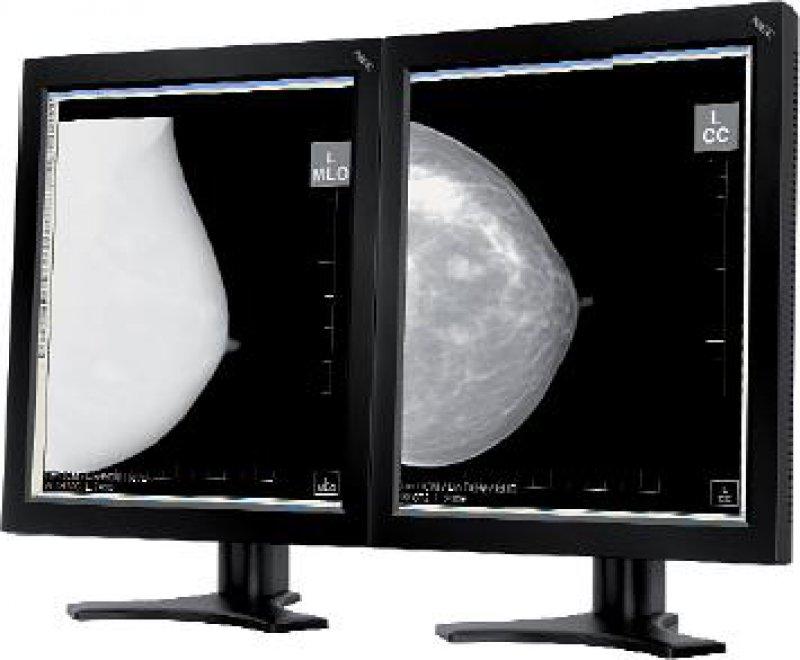 Für den Klinik- und Diagnosebereich hat NEC Display Solutions mit dem MD205MG ein hochwertiges Display mit einer Auflösung von fünf Megapixeln im Graustufenbereich vorgestellt (www.nec-display-solutions.com).