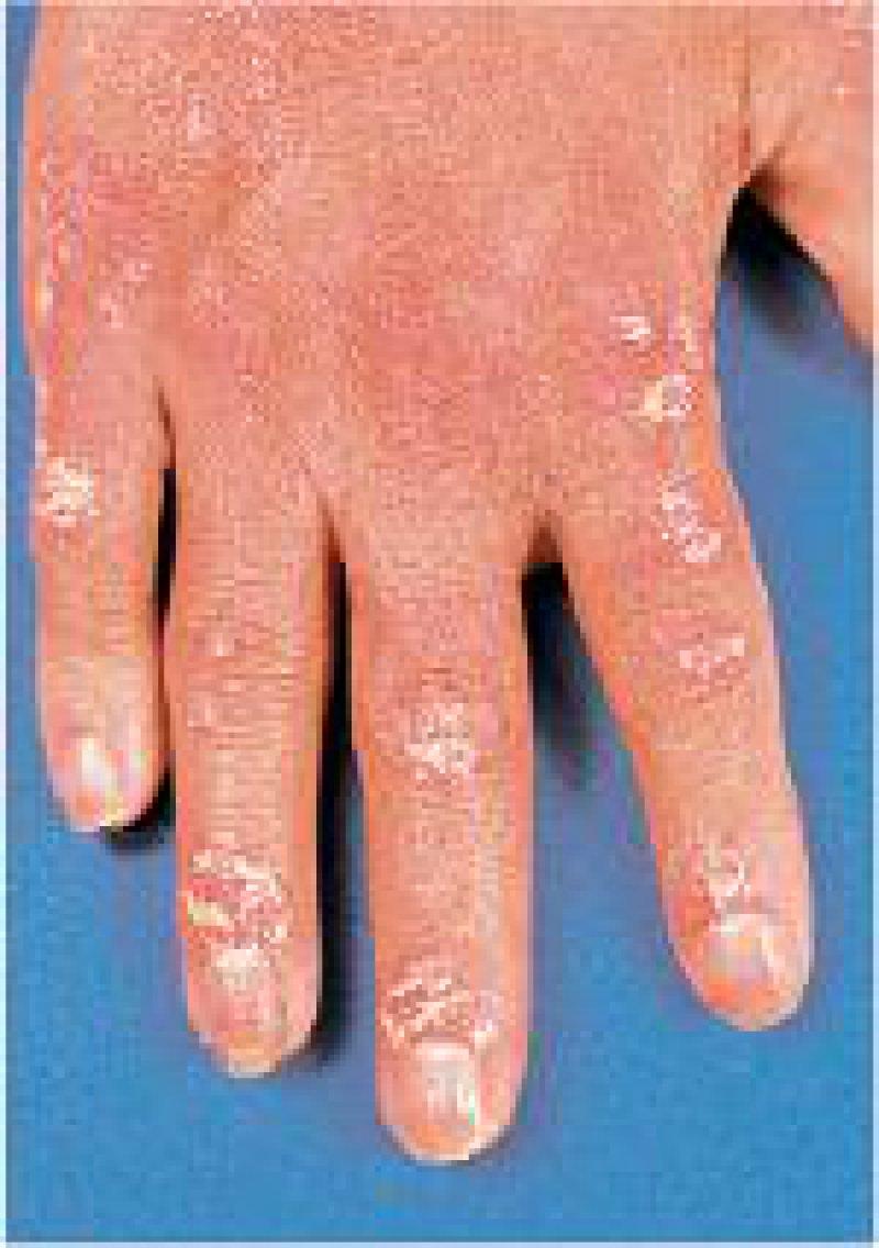 Schuppenflechte führt zu charakteristischen Hautveränderungen. Foto: picture-alliance/Okapia KG