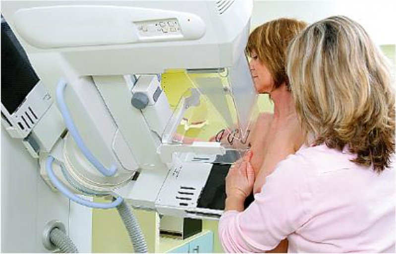 Brustkrebs-Screening: Jede fünfte Frau erhält im Verlauf von zehn Jahren mindestens einen falschpositiven Befund. Foto: Gent Goldewsky/Kooperationsgemeinschaft Mammographie