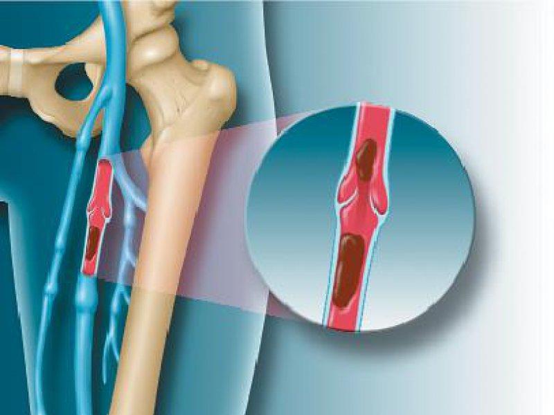 Grafische Darstellung einer tiefen Beinvenenthrombose (TVT) der V. femoralis links. mauritius images / Phototake