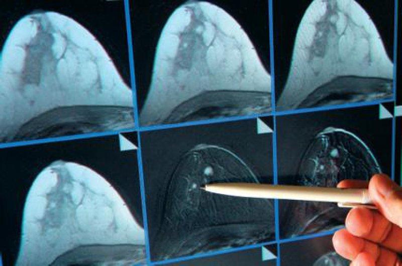 Foto: dpa Vorzüge der MRT in der Mammadiagnostik: Hohe Sensitivität und Spezifität