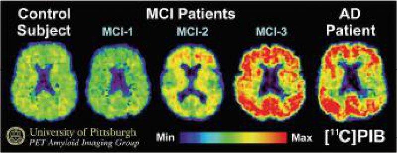 PET-Bilder mit dem Pittsburgh- Compound-B-Tracer zur Frühdiagnose von Alzheimer- Demenz. Die Darstellungen zeigen von links nach rechts: einen normalen Befund, in der Mitte drei Befunde mit kognitiven Auffälligkeiten (mild cognitive impairment, MCI) und rechts eine leichte Alzheimer-Demenz.