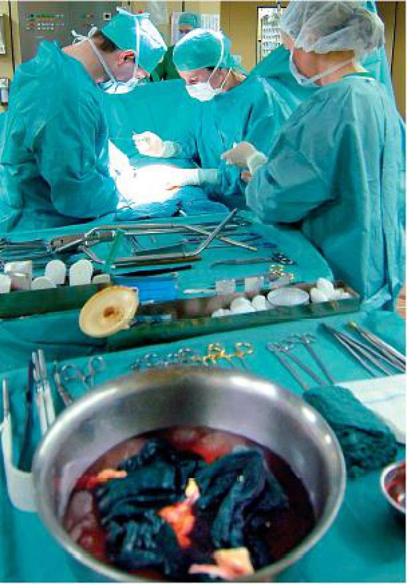 Organtransplantation: Standards für Qualität und Sicherheit sollen künftig innerhalb der EU harmonisiert werden. Foto: dpa