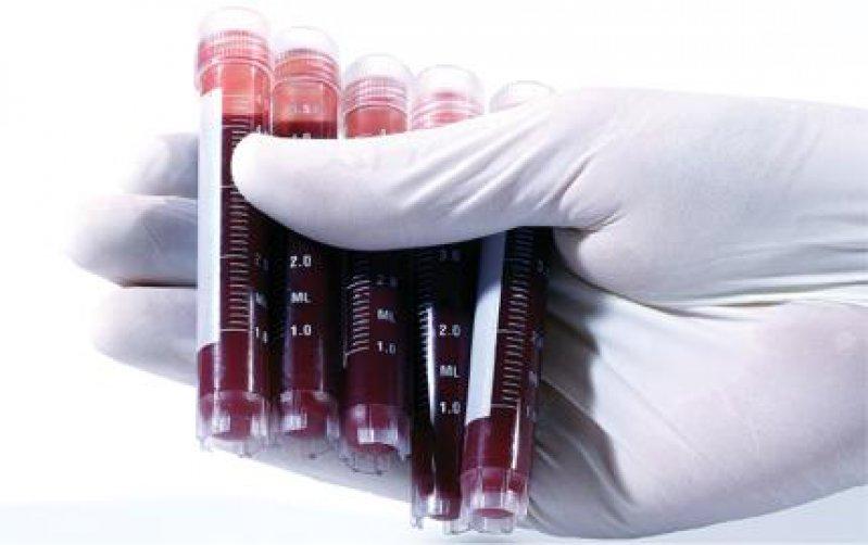 Biomarker sind charakteristische biologische Merkmale, die sich unter anderem in Blut und Gewebe messen lassen und auf einen normalen oder krankhaften Prozess im Körper hindeuten. Foto: Novartis