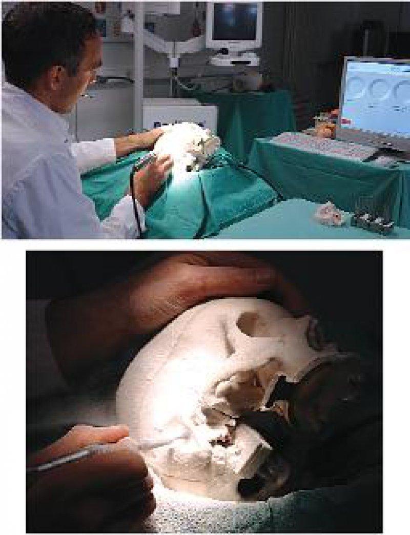 Komplizierte Eingriffe können angehende Chirurgen an einem Simulationssystem planen und üben, um Sicherheit für den Ernstfall zu gewinnen. Fotos: ICCAS