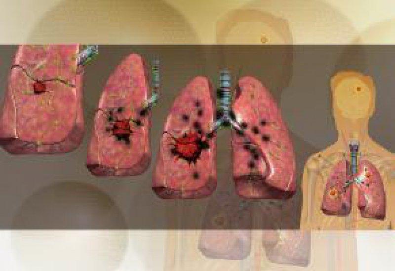 Krankheitsstadien des Lungenkarzinoms