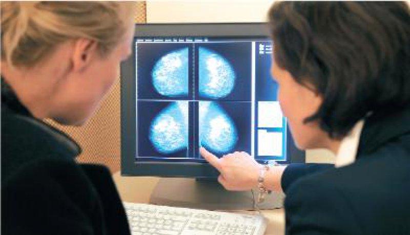 1,45 Millionen Frauen haben in den ersten 30 Monaten des Programms am Mammografie- Screening teilgenommen. Foto: dpa