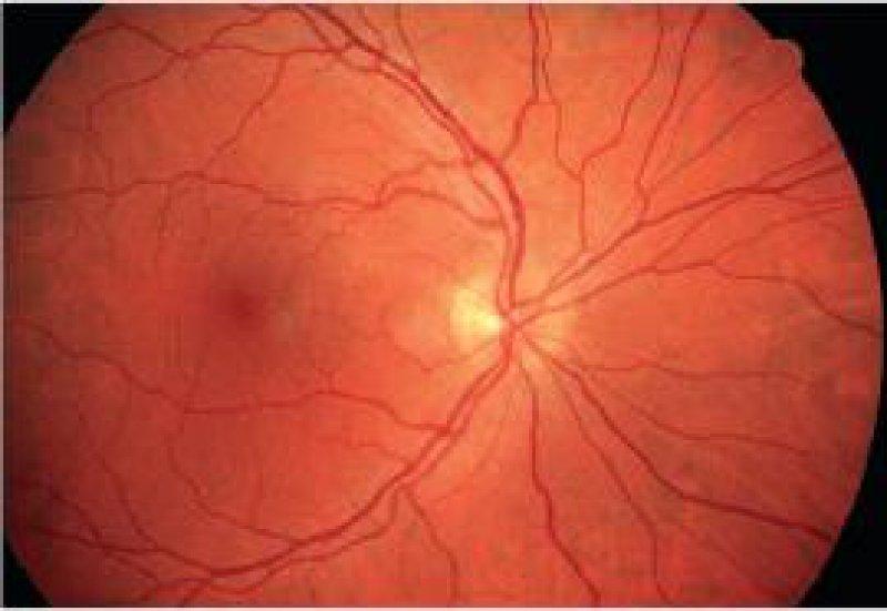 Die gesunde Netzhaut ist mit mehr als 100 Millionen Nervenzellen die erste neuronale Station des Sehsystems. Hier wird das Bild der Umwelt in ein neuronales Erregungsmuster übersetzt und über die 1,5 Millionen Fasern im Sehnerv an die visuellen Zentren des Gehirns weitergeleitet. Foto: Prof. Dr. H. Busse, Universitätsklinikum Münster