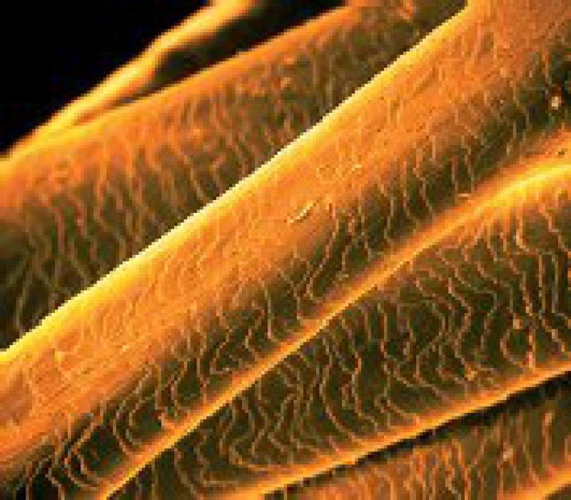 Menschliches Haar in einer Mikroaufnahme. Foto: picture-alliance/OKAPIA