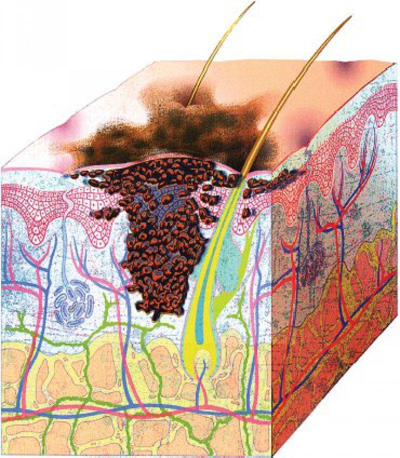 """Malignes Melanom: 50 Prozent entwickeln sich aus pigmentierten Muttermalen,ein Teilaber auch """"spontan""""auf völlig unveränderter Haut. Grafik:Solvay-Arzneimittel"""