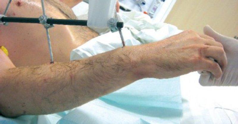 Technisch ein Erfolg: Das Operationsergebnis der weltweit ersten Armtransplantation. Über einen externen Fixateur werden die Arme aufgehängt, um Druckstellen zu vermeiden. Foto: Klinikum rechts der Isar, TU München