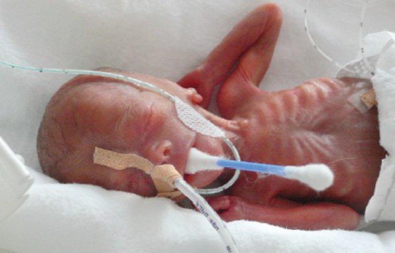 In den 90er- Jahren wurden die ersten Perinatalzentren eingerichtet, in denen, wie in Datteln, Frühgeborene auf hohem Niveau behandelt und betreut werden können. Foto: Vestische Kinder- und Jugendklinik Datteln