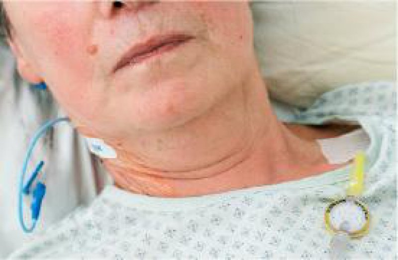 Tumorpatientin mit chronischen Schmerzen. Zur Analgesie eignen sich Opioide. Richtig dosiert verkürzen sie das Leben nicht. Foto: Visum