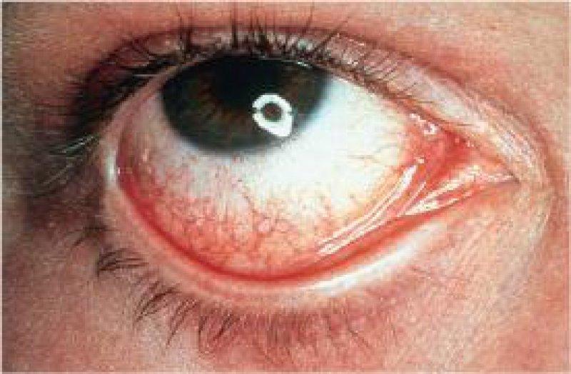 Ein trockenes, gereiztes Auge kann auf ein Glaukom hinweisen. Fotot: Stroebl Communication